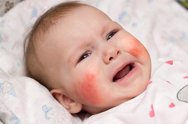 Viêm da cơ địa khiến bé khó chịu và khóc quấy