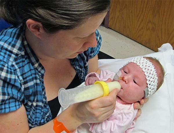 Bình sữa Medela cho trẻ hở hàm ếch, bú yếu