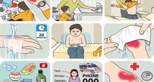 Hướng dẫn cách sơ cứu cho trẻ bị bỏng nhiệt đúng cách