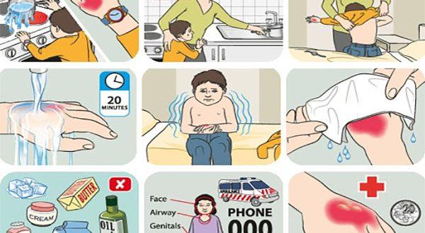 Hướng dẫn cách sơ cứu trẻ bị bỏng ba mẹ không nên bỏ qua