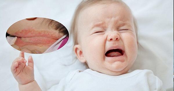 Trị hăm cổ an toàn và hiệu quả cho trẻ sơ sinh